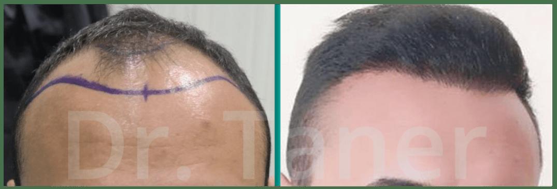 Resultaat haartransplantatie voor en na