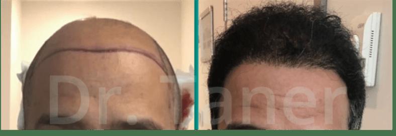 Voor en na haartransplantatie grafts FUE Saffier DHI FUE