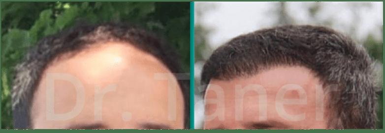 Voor en na haartransplantatie - wanneer resultaat implantatie haar
