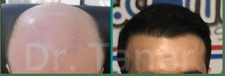 Haartransplantatie Resultaat implantatie na 12 maanden eindresultaat