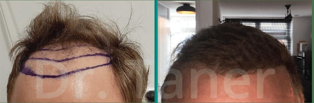 Haartransplantatie voor en na - kaal worden man verhelpen