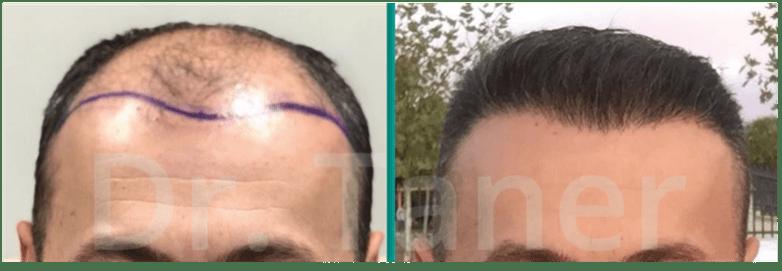 Resultaat na haartransplantatie voor en na