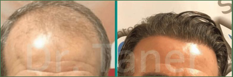 Resultaat haarimplantaat na 12 maanden -  voor na DHI FUE